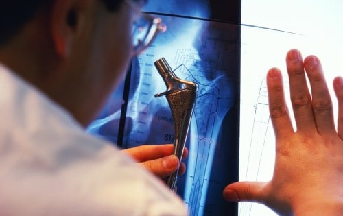 Quelle rééducation après la pose d'une prothèse de hanche ?